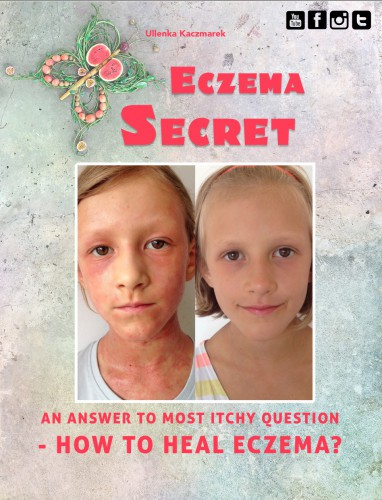 ECZEMA SECRET – an answer to the most itchy question: HOW TO HEAL ECZEMA?